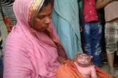 В Индии родился ребенок с необычной внешностью.